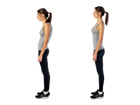 Woman with impaired posture position defect scoliosis and ideal bearing.