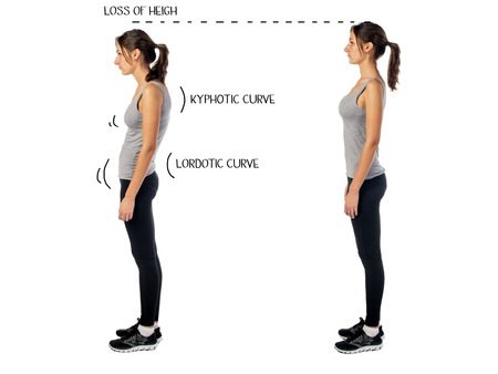 sedentary: Woman with impaired posture position defect scoliosis and ideal bearing.