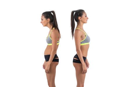 buena postura: Mujer con una alteración de la escoliosis Posición de la postura de defectos y de apoyo ideal. Foto de archivo