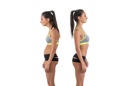 Woman with impaired posture position defect scoliosis and ideal bearing. photo