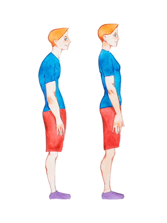 Watercolor illustration of people with right and wrong posture. Man with normal healthy spine and abnormal sick spine in comparison 스톡 콘텐츠