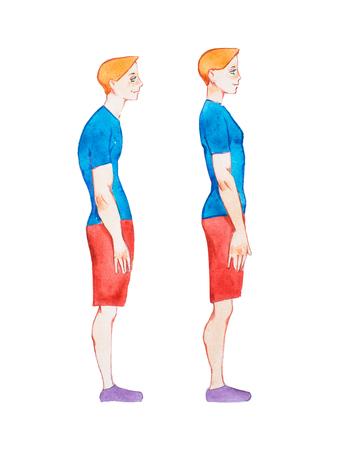 Ilustración de la acuarela de la gente con la postura correcta y incorrecta. Hombre con columna vertebral normal y columna vertebral enferma anormal en comparación Foto de archivo - 80550973