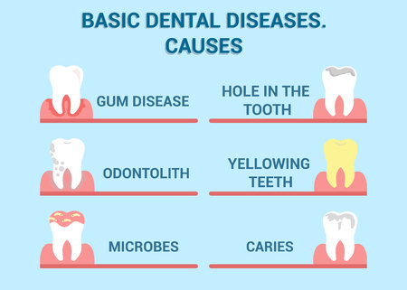 Dental Diseases, Cavity Illness Vector Info Poster. Dentistry, Mouth Hygiene Problems Flat Illustration with Typography. Gum Disease, Odontolith, Microbes, hole in Tooth, Yellowing Teeth, Caries 向量圖像