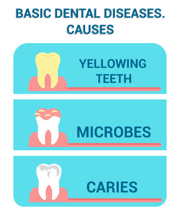 Basic Dental Diseases, Sickness Vector Info Poster. Teeth Treatment, Dentistry, Stomatology Clinic Banner. Cavity Illness Flat Illustration with Typography. Yellowing Teeth, Microbes and Caries 向量圖像