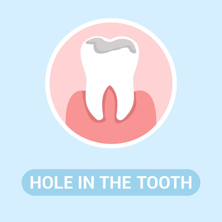 Dental Clinic, Stomatology Social Media Banner. Hole in Tooth Flat Vector Illustration with Typography. Toothache, Caries, Cavities, Dental Problem Cartoon Web Poster Concept. Mouth Illness Treatment Illustration