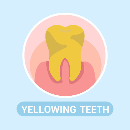 Dentistry, Stomatology Social Media Banner Concept. Yellowing Teeth Flat Vector Illustration with Typography. Bad, Unhealthy Yellow Enamel. Mouth Hygiene. Teeth Whitening Service Cartoon Poster 向量圖像