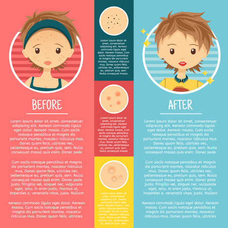 skin problem: Infographics on problem skin with illustrations girl with pimples, pores, acne before and after. Vector