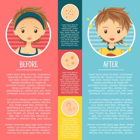 Infographies sur les problèmes de peau avec des illustrations fille avec des boutons, pores, l'acné avant et après. Vecteur Vecteurs
