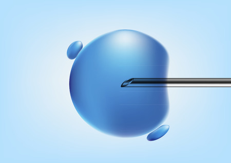 vector illustration of  in vitro fertilisation