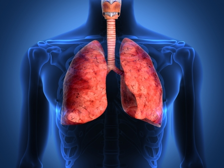 Detail of an x-ray of lungs on black background Stock Photo
