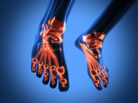 foot doctor: human radiography scan of legs
