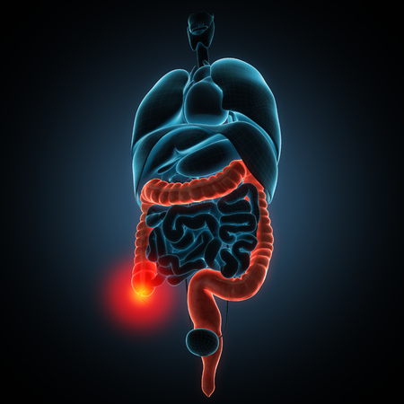 chronic gastritis: anatomically accurate 3d render illustration Stock Photo