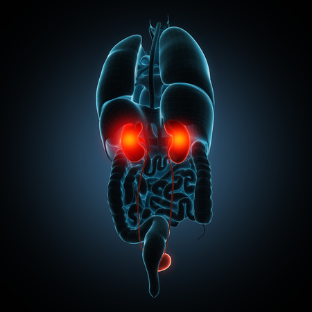 renal failure: anatomically accurate 3d render illustration Stock Photo