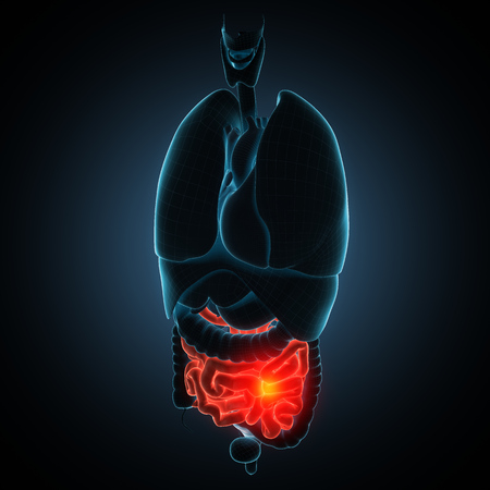 bowel cancer: anatomically accurate 3d render illustration Stock Photo