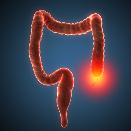 ulcerative colitis: anatomically accurate 3d render illustration Stock Photo