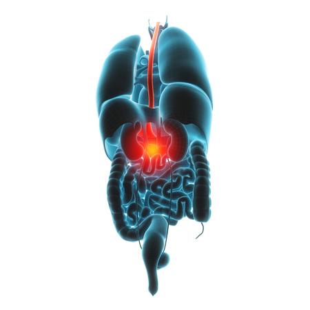 cirrhosis: liver organ pain 3d illustration