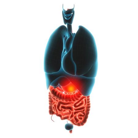 gastroparesis: stomach organ pain 3d  illustration