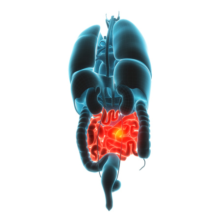 malabsorption: guts organ pain 3d illustration