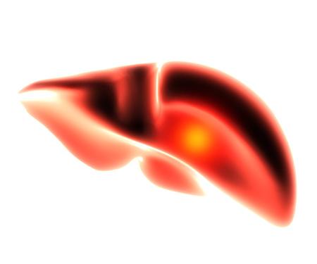 inflammated: liver organ pain 3d illustration