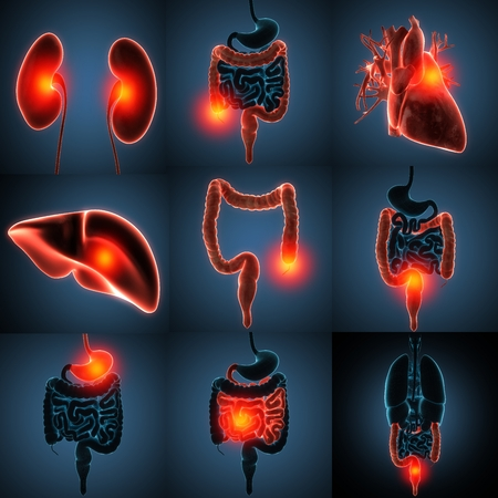 colorectal cancer: anatomically accurate 3d rendering of human organs