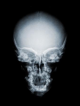 huesos humanos: cráneo humano frontal como rayos X