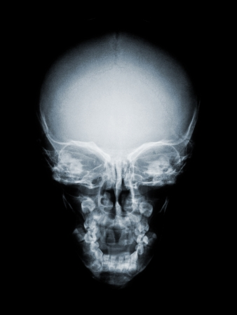 cranium:  human cranium frontal as x ray