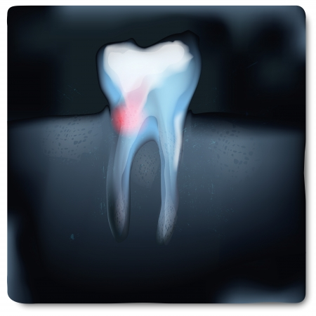 X-ray image with tooth and tooth pain  Vector