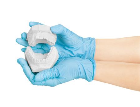 molares: manos que sostienen los modelos de yeso dental concepto dental