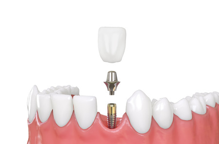 jaw model tooth implant 3d illustration