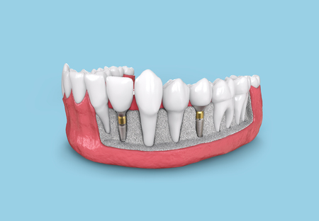 tooth implant model in jaw 3d illustration