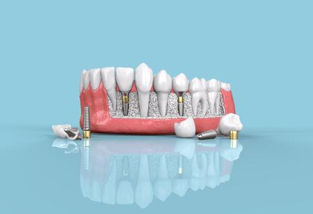 tooth dental implant model 3d illustration Stock Photo