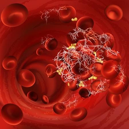 Illustration vectorielle d'un caillot sanguin, d'un thrombus ou d'une embolie avec des globules rouges coagulés, des plaquettes dans les vaisseaux sanguins du corps