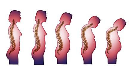 Skeleton_Spine (Veränderung der Wirbelsäule mit dem Alter) Vektorgrafik