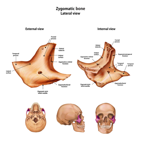 Zygomatic bone.  With the name and description of all sites.