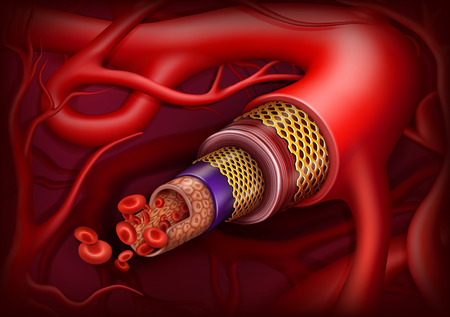 Artery structure. Vector ilustration. Medical concept. Vecteurs