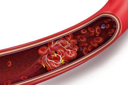 Coagulo di sangue (trombo) in vena. Illustrazione 3d di vettore isolato su sfondo bianco trasparente. Vettoriali