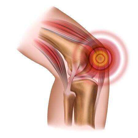 Knee pain. Injury to the leg, patella, knee joint. Vector illustration isolated on a white background. Ilustração