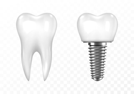 Human tooth and Dental implant on transparent background