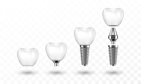 Tooth implant in disassembled form Ilustracja