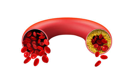 Normal and cholesterol-blocked artery on a white background. Vector illustration