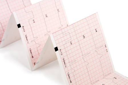 electrocardiogram on White Background  close up Stock Photo