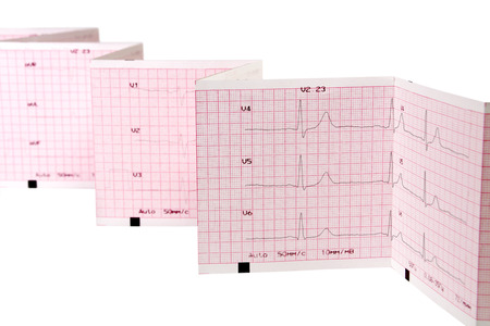 electrocardiogram on White Background
