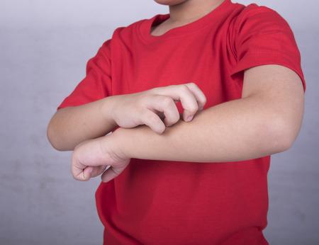 Child kratzen den Juckreiz mit der Hand Standard-Bild - 43900672