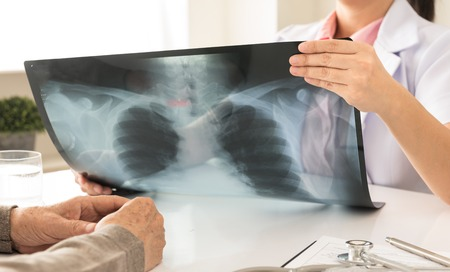 doctor holding x-ray or roentgen image in hospital with patients