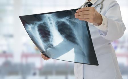 Arts die borströntgenstraalfilm van patiënt onderzoeken bij het ziekenhuis.