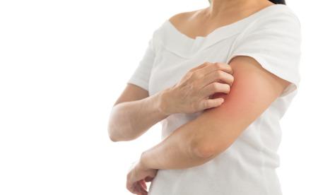 Jeuk van huidaandoeningen bij vrouwen die de hand krabben. Rood rond het jeukgebied. Concept met gezondheidszorg en medicijnen.
