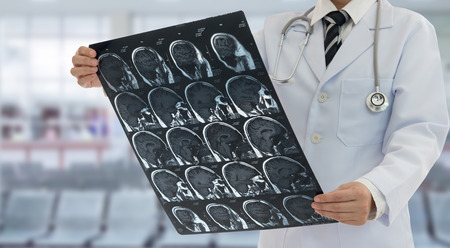 Doctor examines film x-ray brain by mri or ct scan  of the patient.