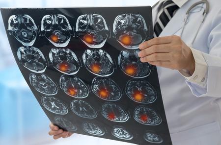 Brain tumor. Doctor examines the MRI scan brain x-ray image of the patient. Standard-Bild - 119798105