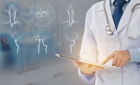medical technology and medical research concept. doctor using digital tablet with stroke brain research science. Archivio Fotografico