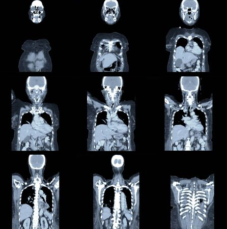 front body x-ray image by mri scan. medical concept. Stock Photo